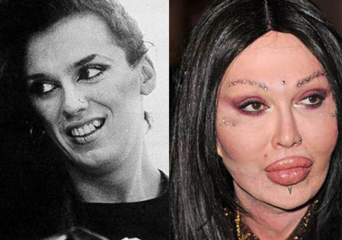 Surgery Pete Burns